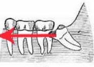 zub-mudr1