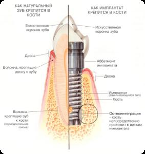 implant-v-razreze