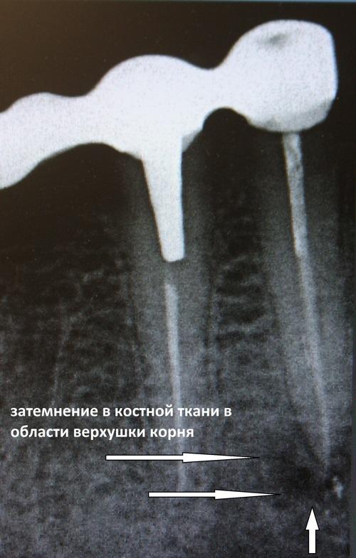 Эндодонтия