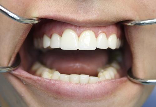 Зубные виниры саратов